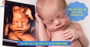Siêu âm thai 4D
